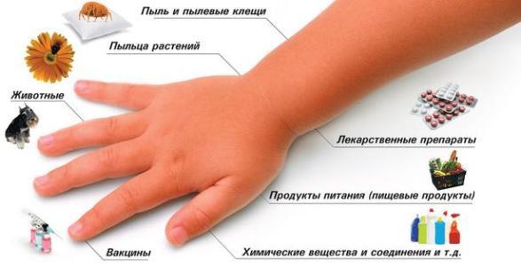перечень причины дерматита