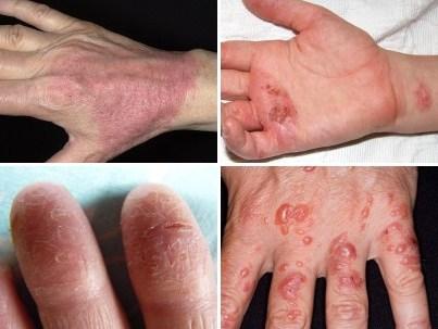 как выглядит на руке