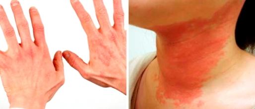 дерматит на шее и шелушение на руках