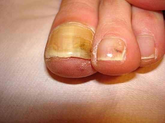 при грибке ногтей