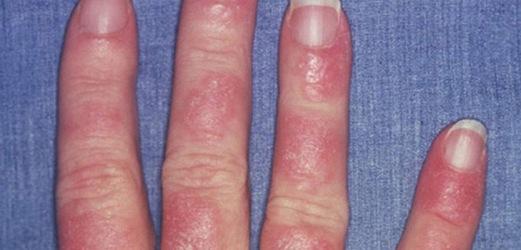 симптомы на пальцах