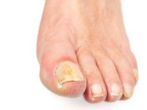 форма грибка ногтей