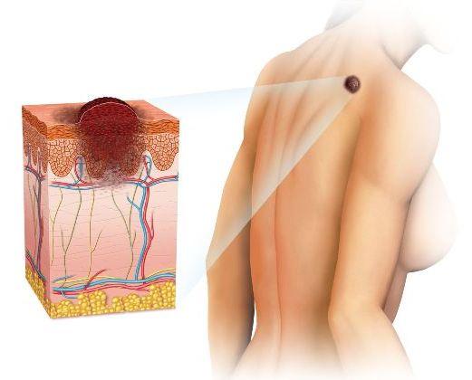 меланома на спине
