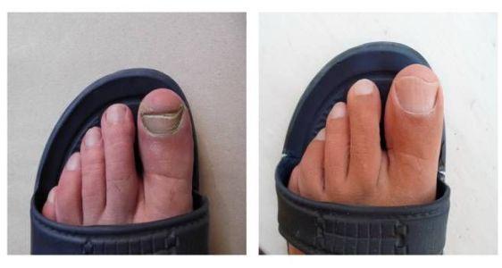 ногти после лечения