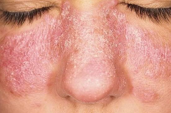 дерматологическое проявление