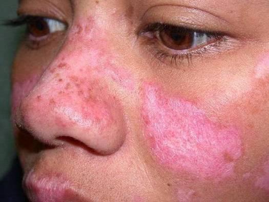 экземы на лице