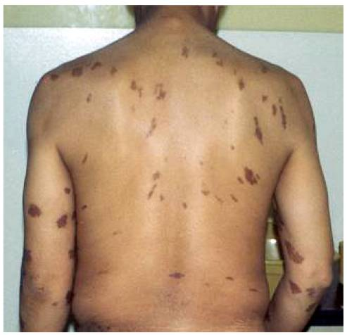 признаки на спине