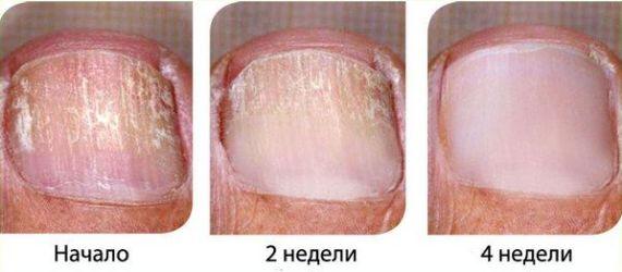 результаты лечения