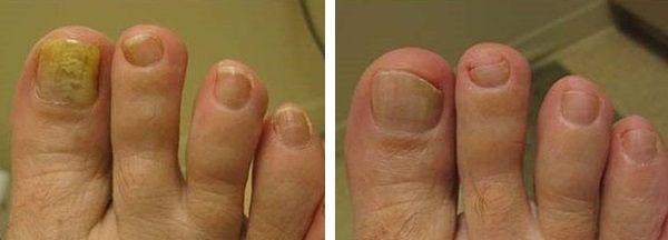 поражение грибком ногтей