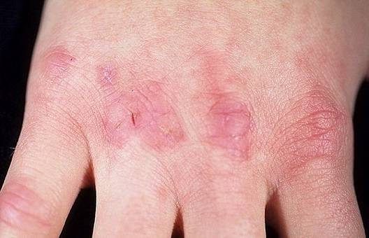 трескается кожа на пальцах рук