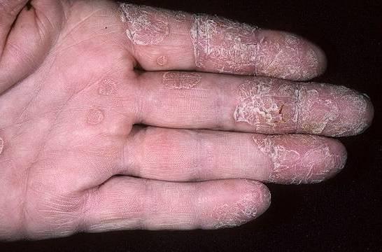 кожа шелушится