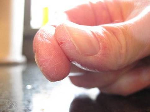 треснул большой палец
