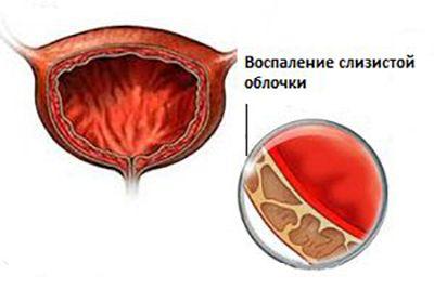 воспаление слизистой