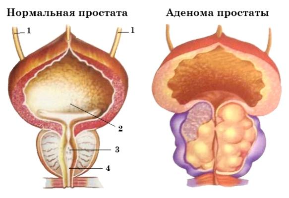 как выглядит адонома предстательной железы