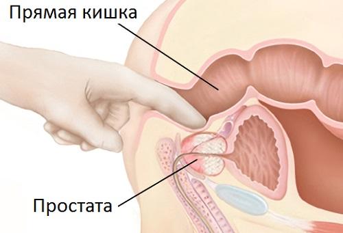 Простатиты у мужчин лечение массаж видео