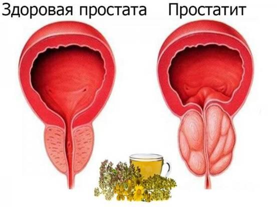 здоровая простата и простатит
