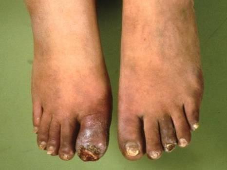 гангрена на пальцах ног