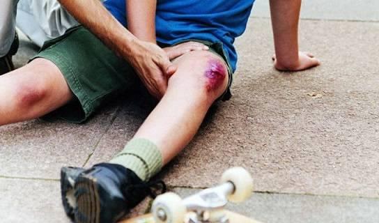 разбитая коленка