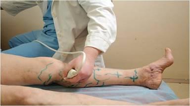 узи обследование ноги