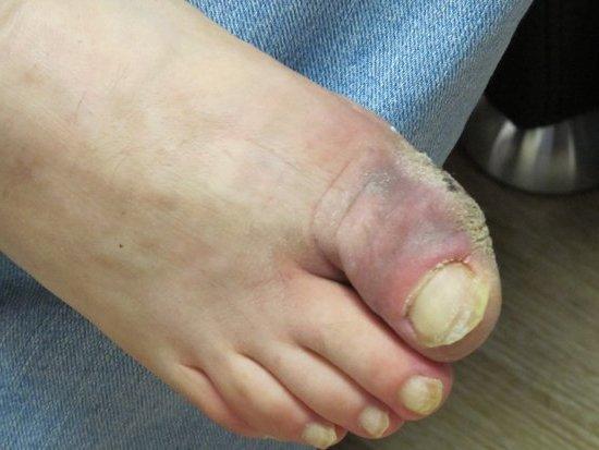 начинается гангрена на пальцах ног