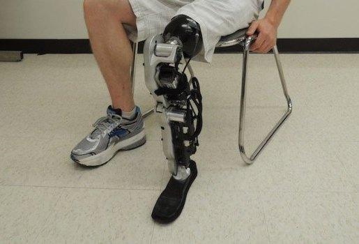 протез на ноге