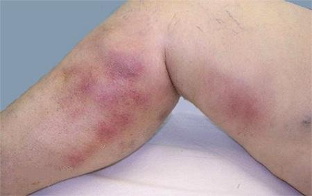 уплотнения в ногах