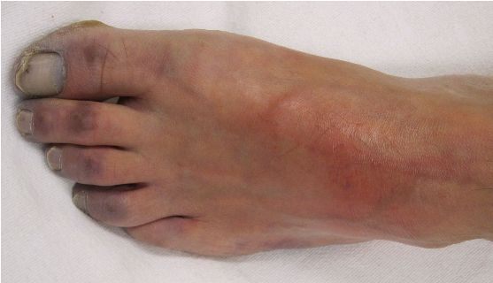 посинение ноги