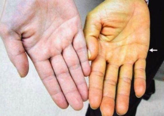 желтеют руки