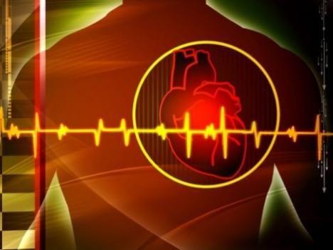 аритмия сердца человека