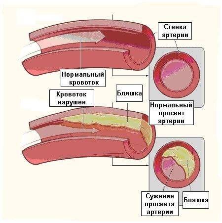 сосуды с нормальным и нарушенным кровотоком