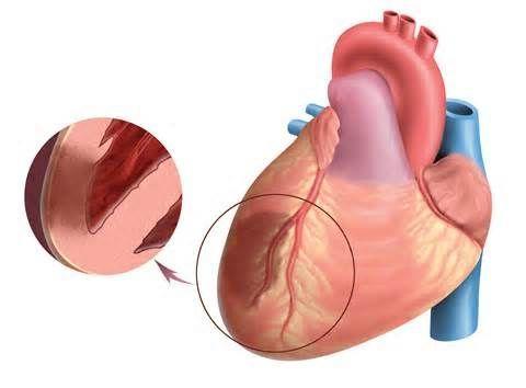 признак заболевания сердца