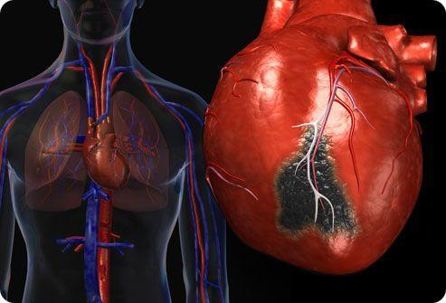 разрыв сосудов сердца