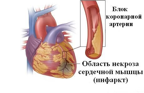 блок коронарной артерии