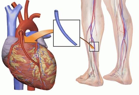 шунтирование аорты