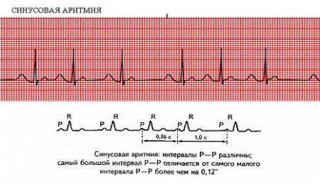 как выглядит синусовая аритмия сердца