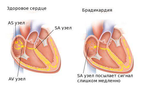 здоровое сердце и брадикардия