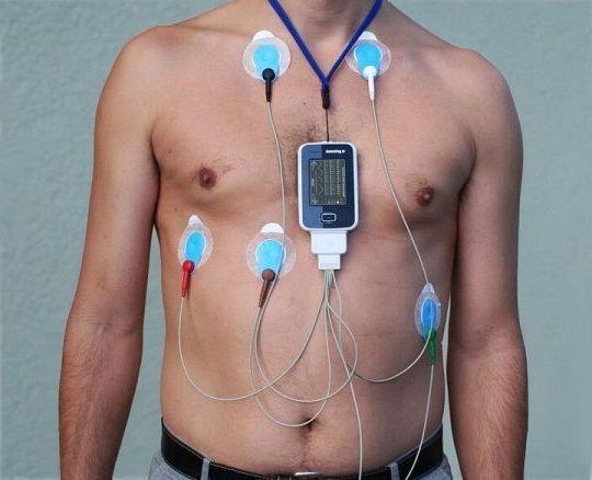 кардиотография сердца