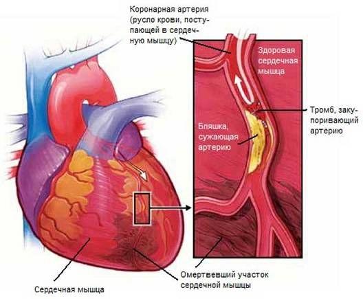 тромб закупоривающий артерию