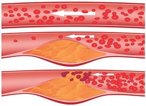 этапы атеросклероза