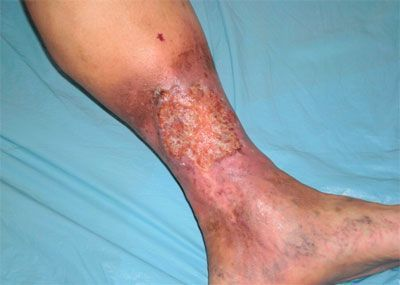 атеросклероз сосудов ноги