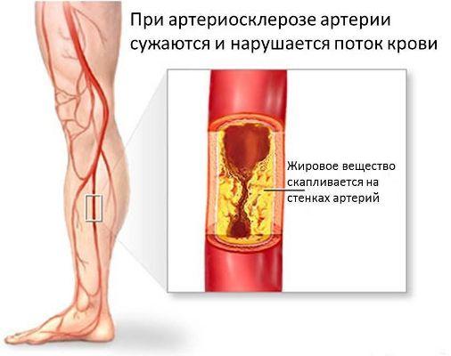 при атеросклерозе артерии