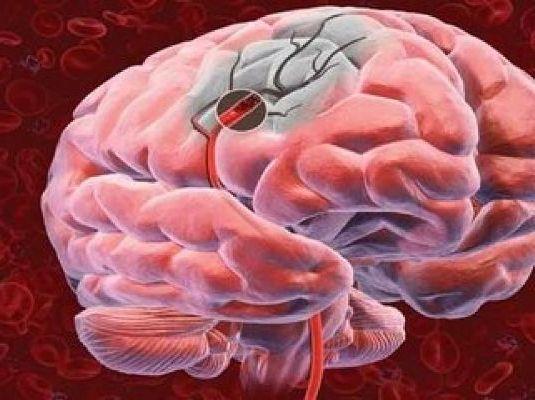 нарушение работы мозга