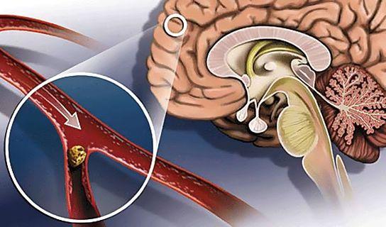 закупоривание сосудов мозга