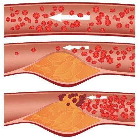 нормальный кровоток и с помехами