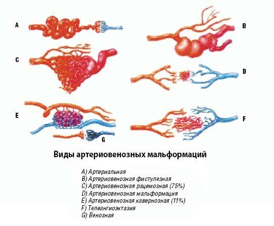 патологии при развитии болезни