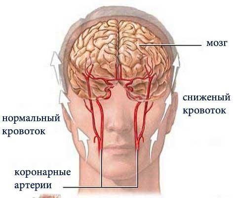 сниженный кровоток в голову