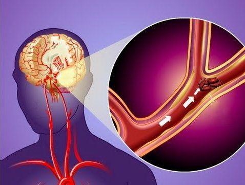 закупоривание сосудов в головном мозге