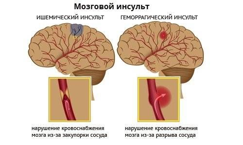 мозговой инсульт