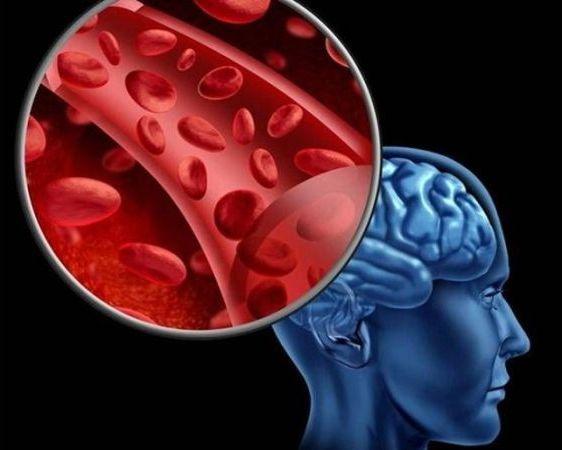нормализация кровотока в мозгу