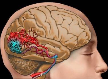 человеческий головной мозг